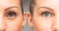 Chraňte svůj zrak v každém ročním období!